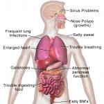 Blausen_0286_CysticFibrosis[1]